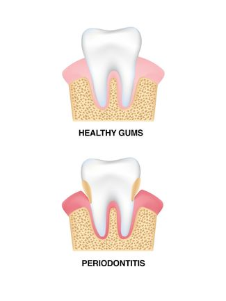 Illustration of healthy gums vs. periodontitis
