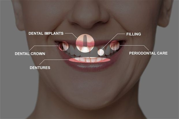 Treatments that may be included in a full mouth reconstruction.
