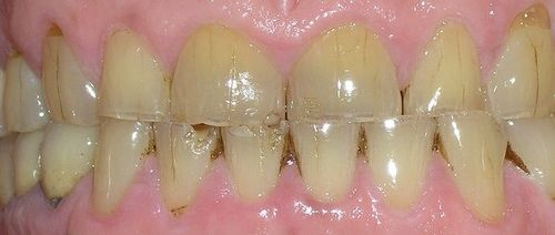 image of patient before dental implants