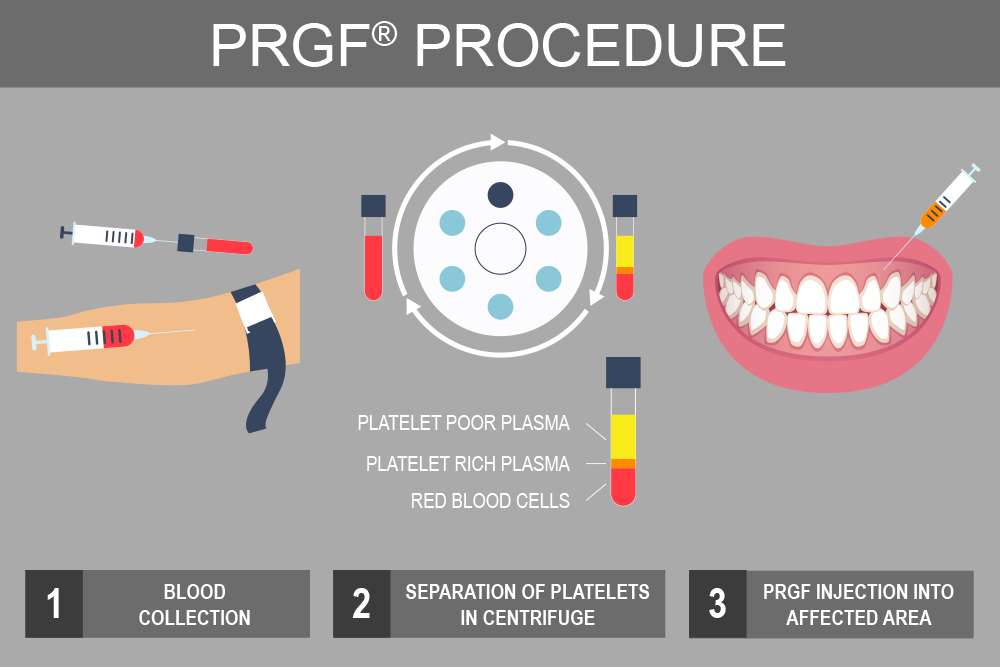 Illustration of the PRGF® procedure.