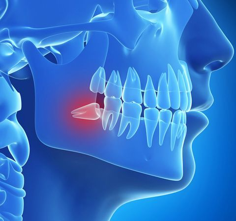 Digital illustration of an impacted wisdom tooth