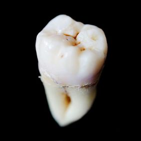 Image of extracted tooth