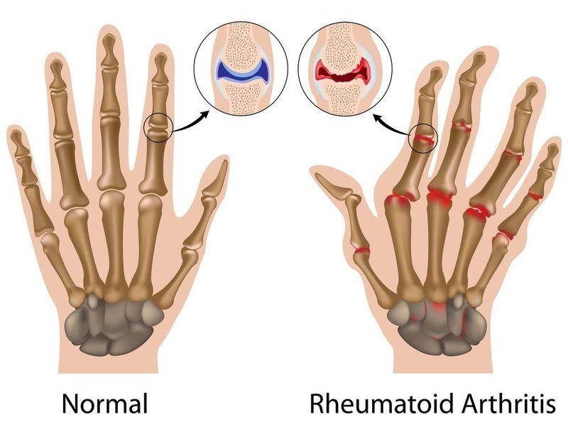 Normal hand vs. rheumatoid arthritis