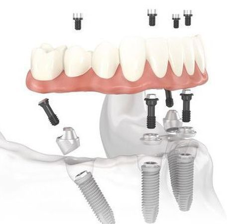 Illustration of a all-on-4 dental implants