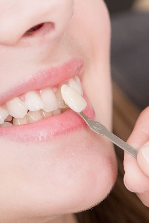 Porcelain veneer being placed on a front tooth