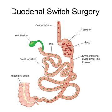 Illustration of a Duodenal Switch Surgery
