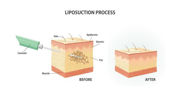 Liposuction illustration