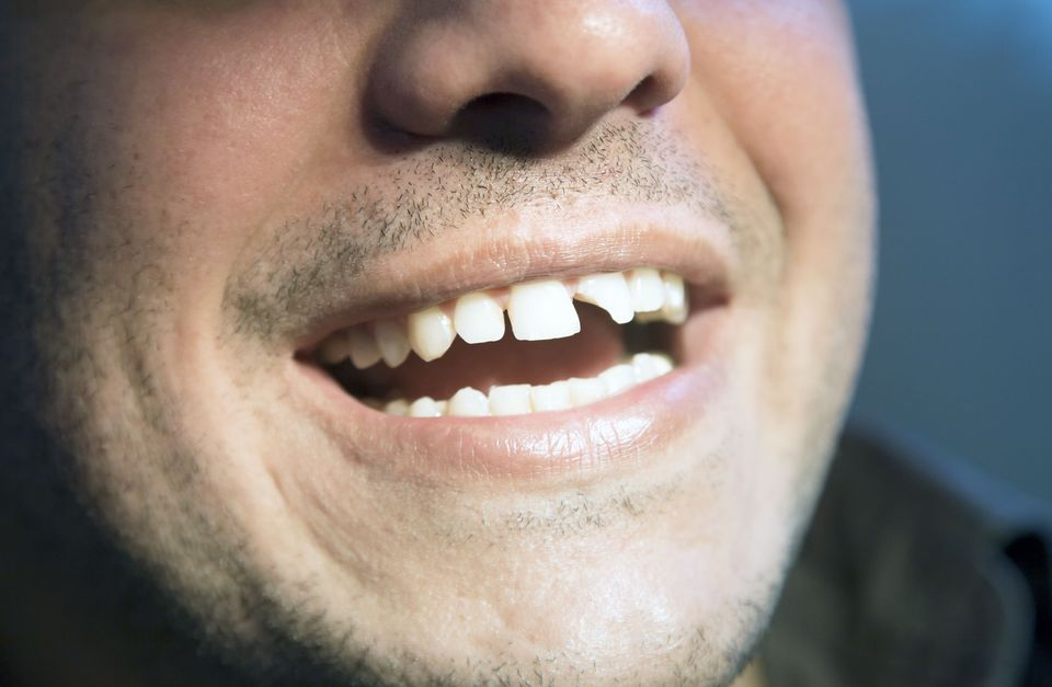 Close up of man's broken front tooth