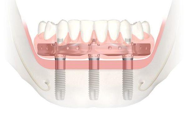 Trefoil Implant