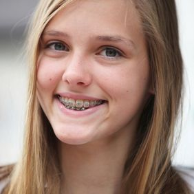 A young girl smiling with braces