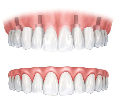 Illustration of how a denture fits onto dental implants