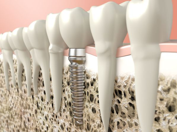 illustration of a dental implant with a crown