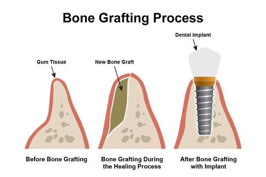 Illustrations depicting stages of bone graft treatment and dental implants