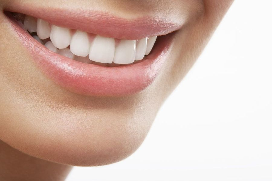 Closeup of woman smiling with perfect white teeth