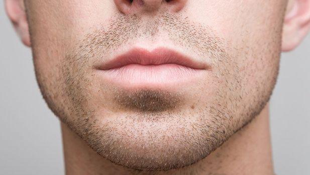 caucasian man facial hair chin surgery augmentation
