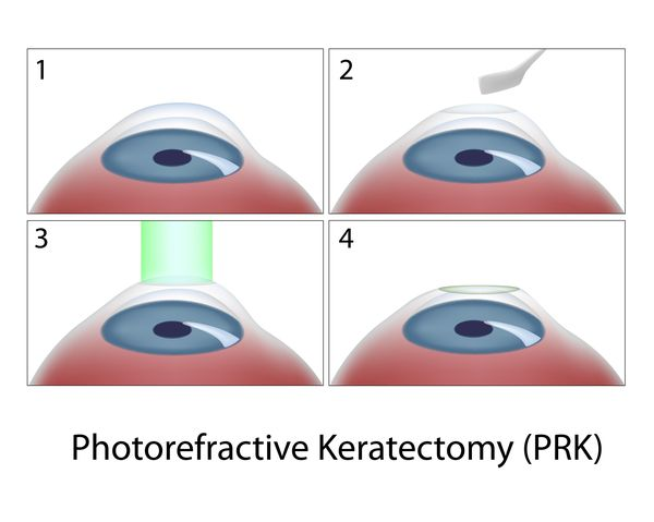 Illustration showing stages of PRK eye treatment