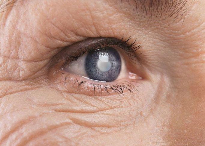Illustration of eyeball showing cataract
