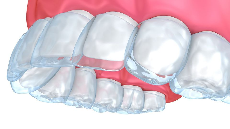 upper teeth with invisalign aligner