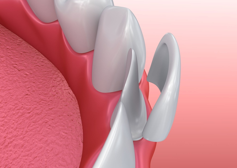 Illustration demonstrating how a veneer fits over the front of a tooth.
