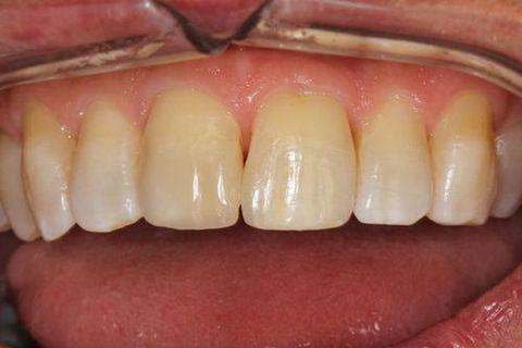 Teeth after dental bonding