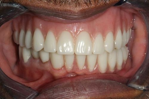 Patient after full mouth reconstruction