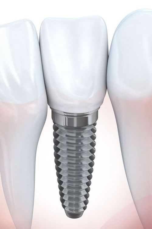 Illustration of a dental implant and crown