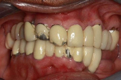 Patient before full mouth reconstruction