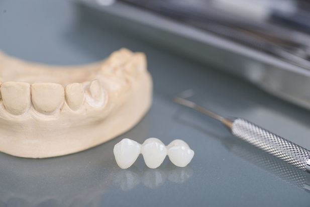 A traditional dental bridge sitting next to a dental mold