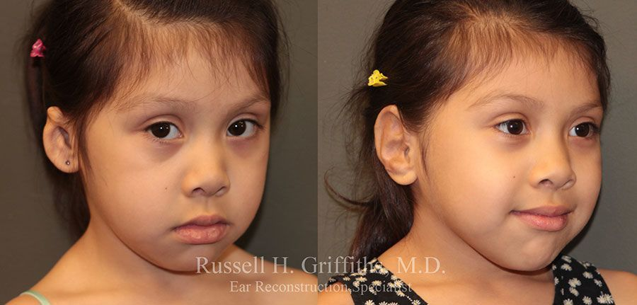 Before and After: One-stage microtia ear reconstruction surgery 3/4 view.