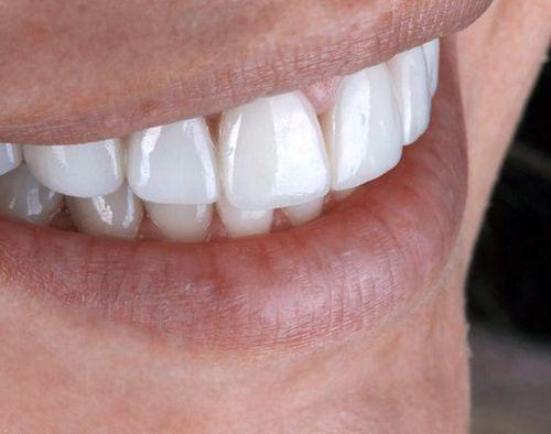 Porcelain Veneers - Troy, MI - Cosmetic Dentistry Institute