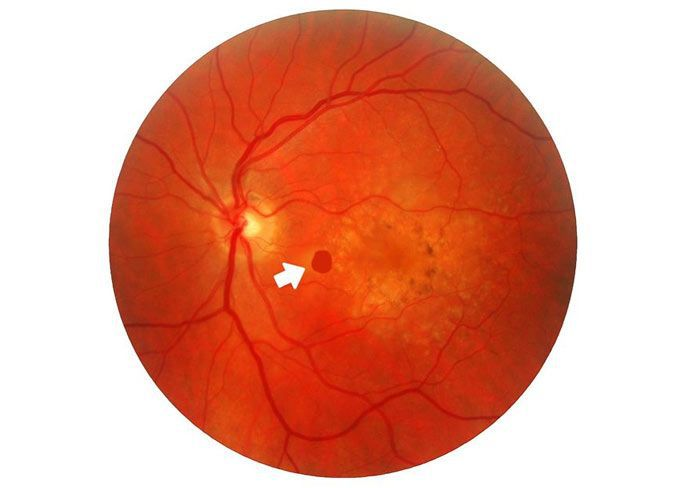 macular holes