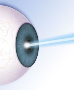 Graphic of blue laser entering the cornea.