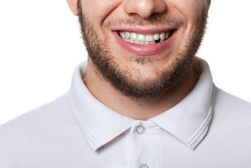 Smiling man missing tooth