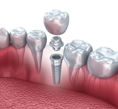 Illustration of a dental implant placement