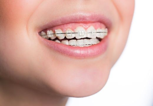 Fashionable woman with braces