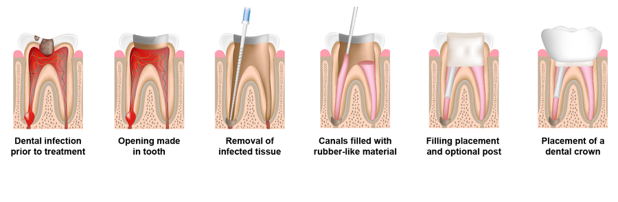 Illustration showing the stages of root canal therapy