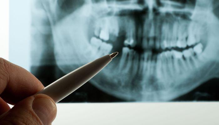 A dental x-ray