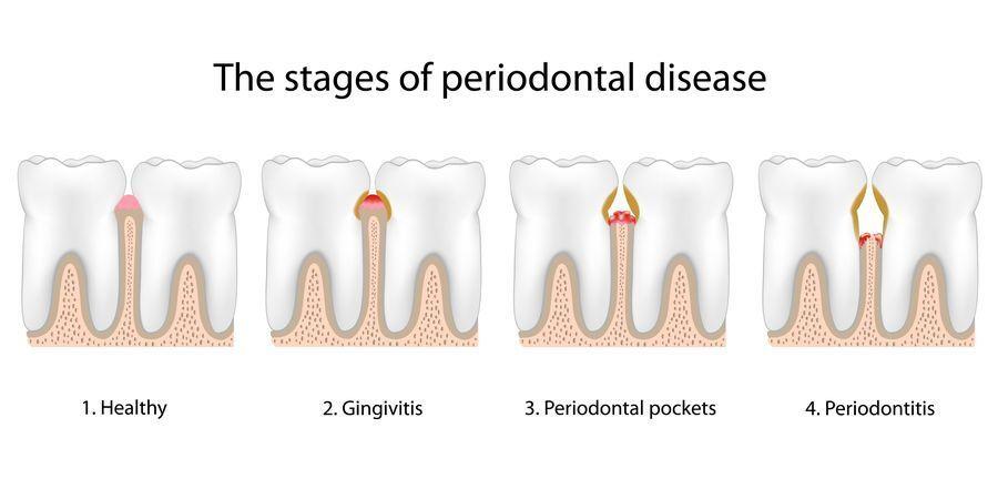 gum disease, stages of periodontal disease
