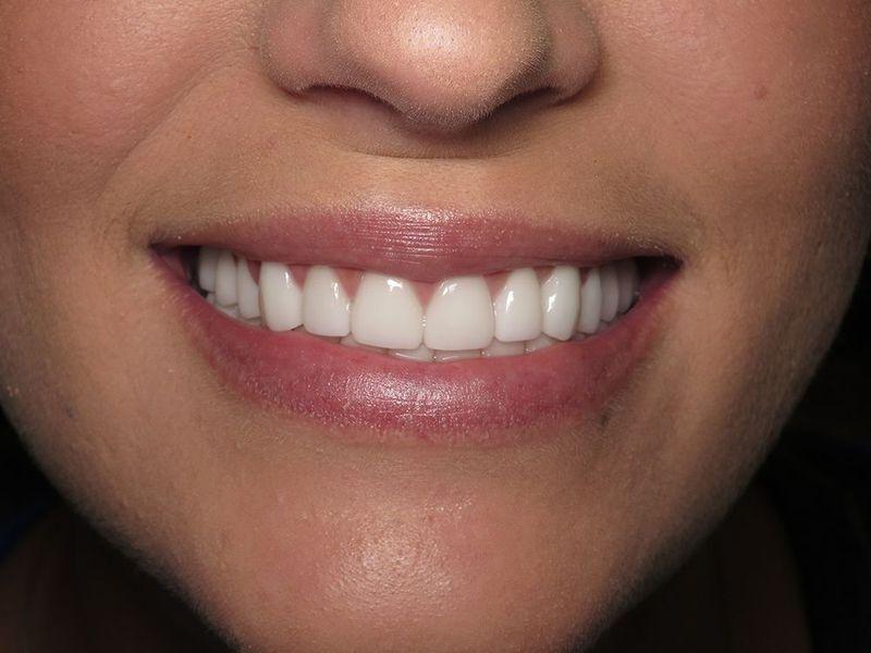 Cosmetic Dentistry - Victoria, TX - Zboril Dental Center