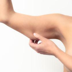 Woman pinching her loose upper arm skin.