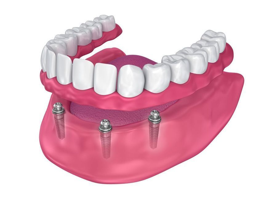 A set of dentures above implants in the jaw.