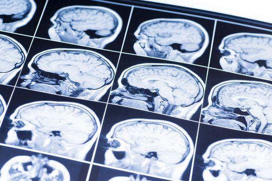 A brain MRI