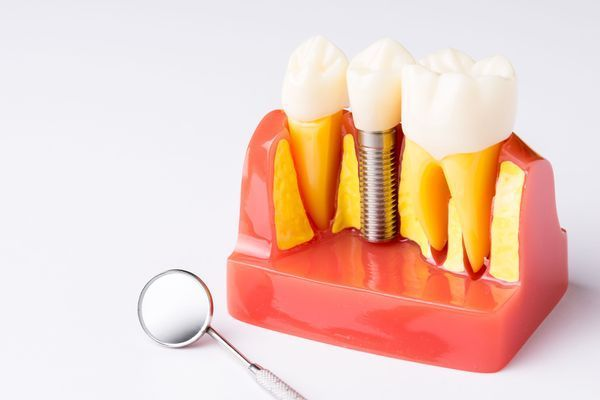 A mock up of a dental implant