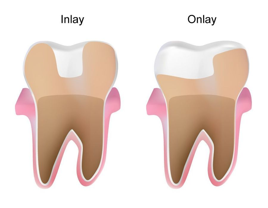 illustration of inlay and onlay