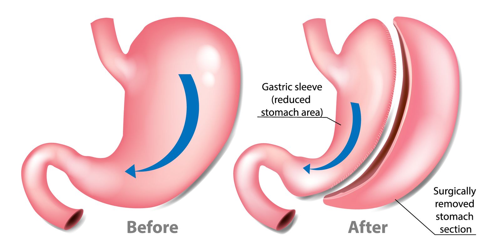 illustration of stomach before and after gastric sleeve