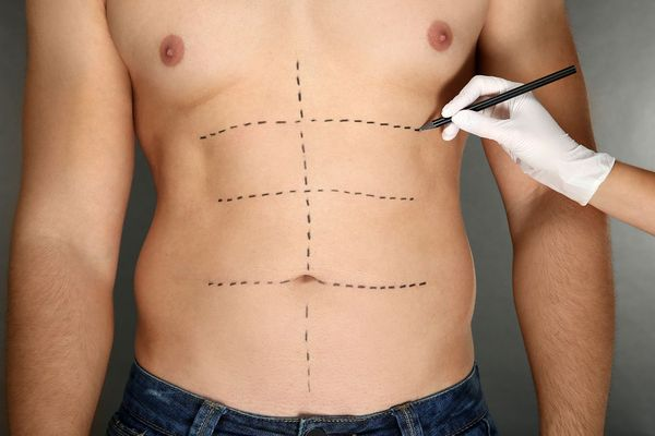 Body Reconstruction after Weight Loss Surgery