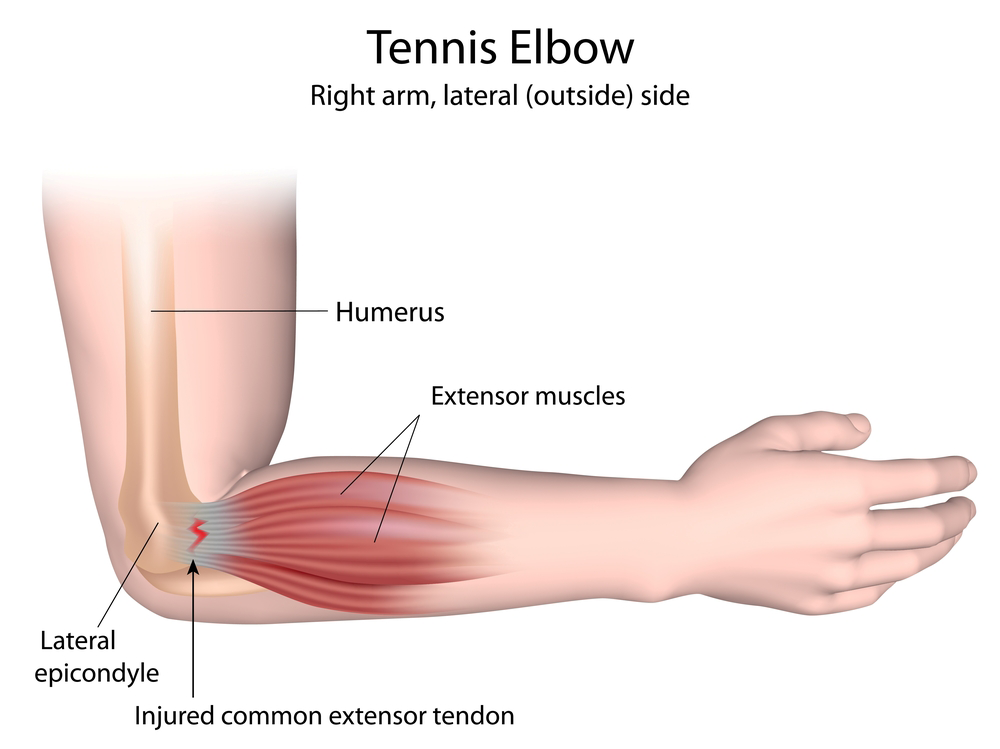 illustration of tennis elbow