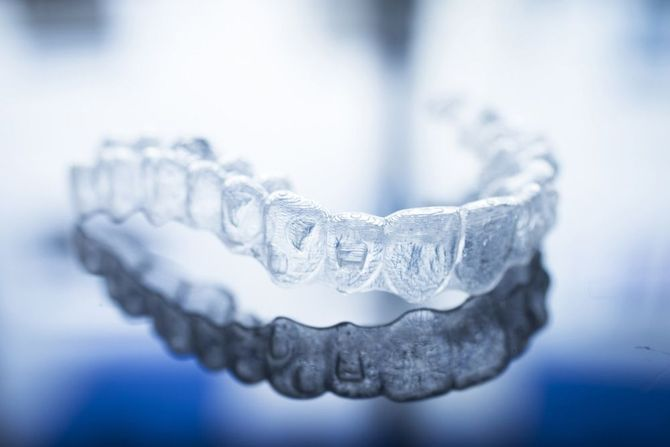 Illustration of clear aligner tray