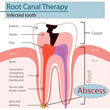 Illustration of damaged tooth requiring root canal therapy