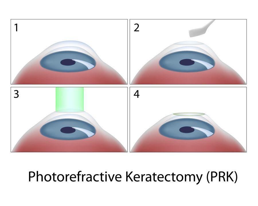 Diagram of the PRK procedure